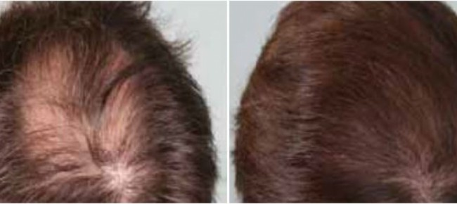 Super Ticinonline - Caduta dei capelli, ecco come sconfiggerla NP76