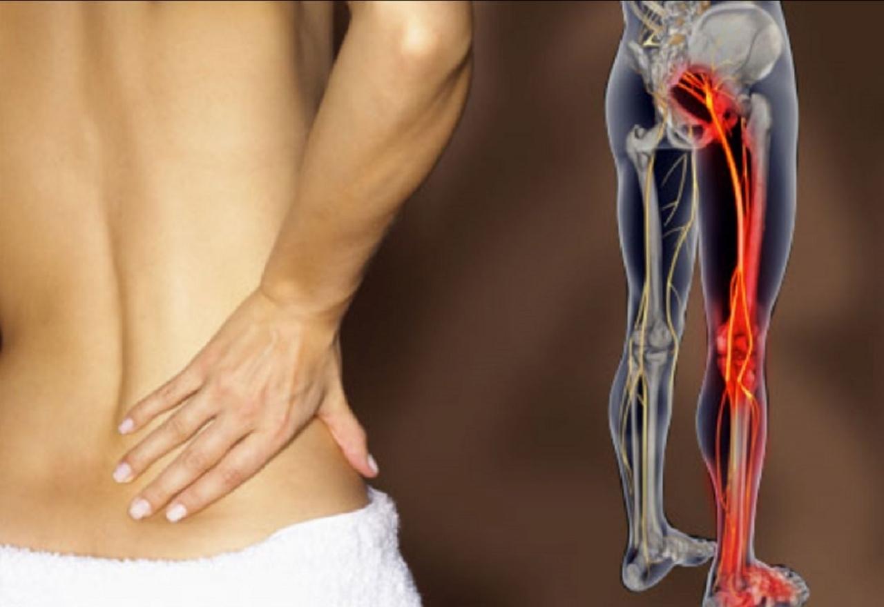 Soffrite di sciatica? Ecco 5 indizi per scoprirlo