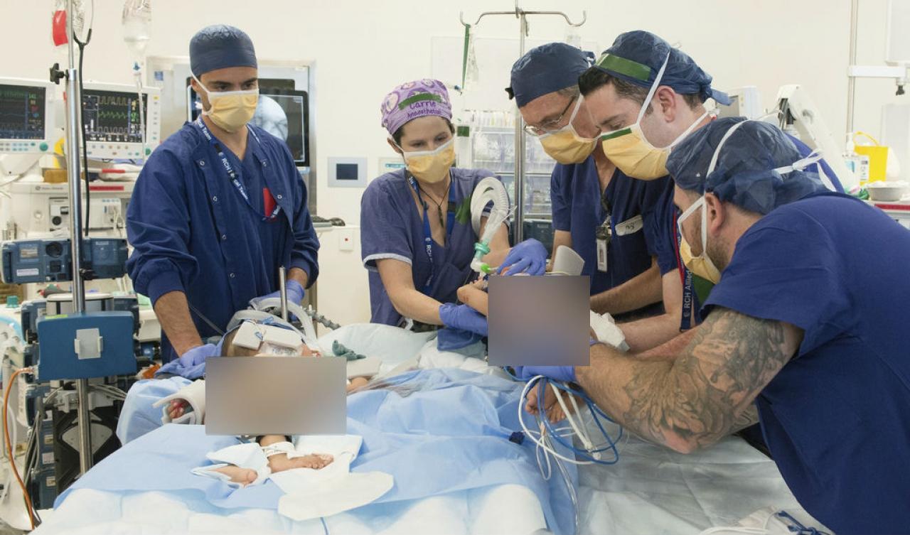 Australia, separate due gemelline siamesi: intervento durato sei ore